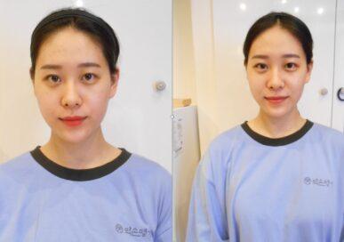[K-BEAUTY 연예인관리 A] 김예림 고객님 - 1회관리